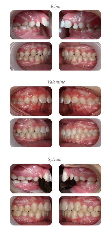 traitement des classes 2, traitement classe 2, traitement des classes II, traitement des classes 2 orthodontie, traitement classe II