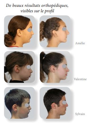 traitement des classes 2, traitement classe 2, traitement des classes II, traitement des classes 2 orthodontie